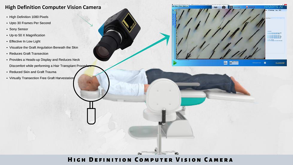 HARRTS Robotic Hair Transplant System - AI Computer Vision Camera (1).png