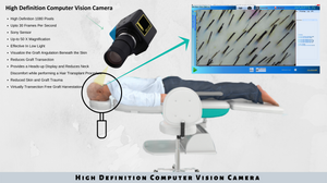 HARRTS Computer Vision Camera that can calculate, analyze and deferentially locate the grafts for extraction.