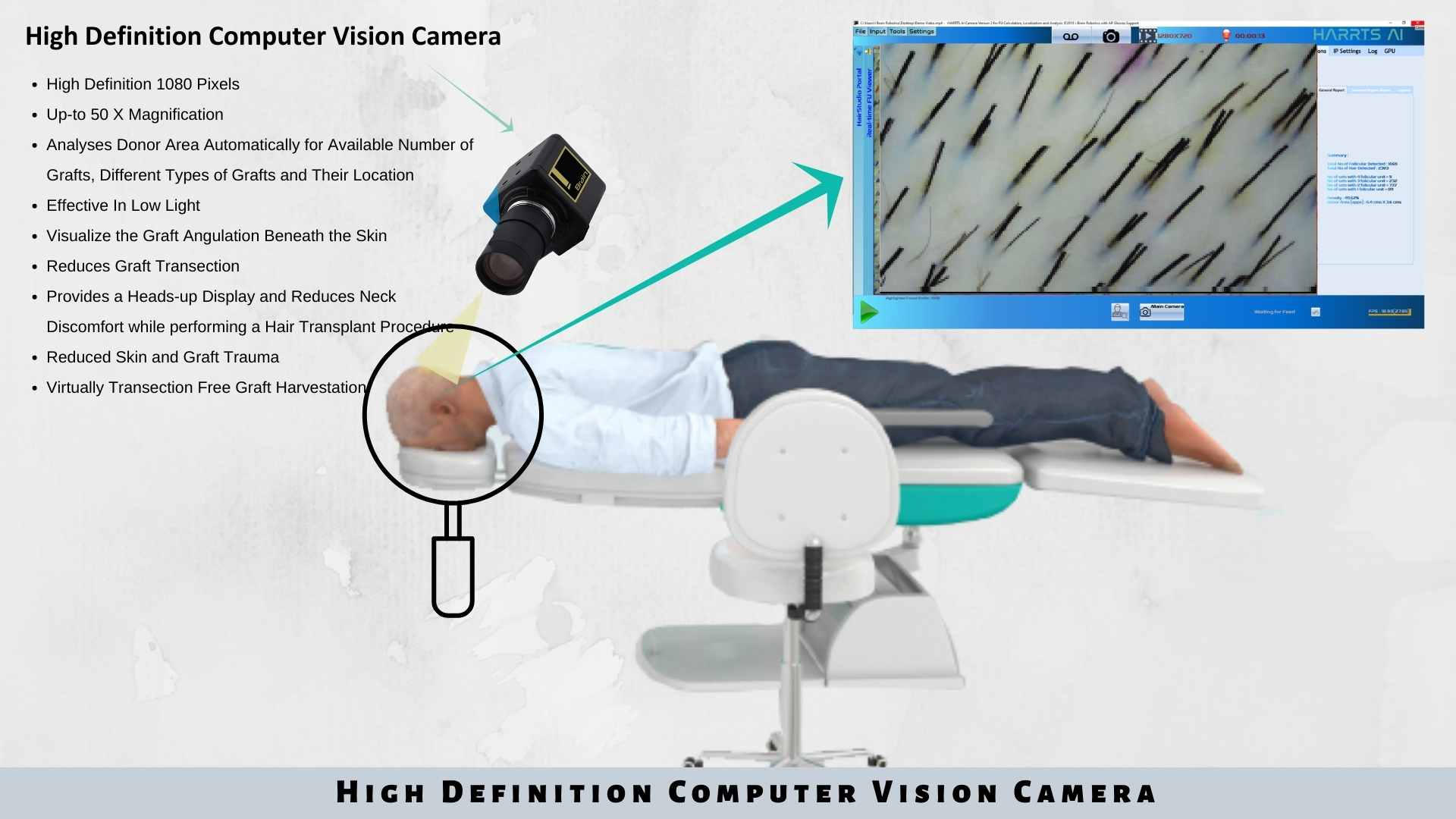HARRTS Computer Vision AI Camera for Hair Transplant