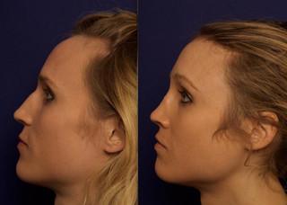 Septorhinoplasty with Cartilage Grafts