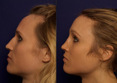 Septorhinoplasty with Cartilage Grafts