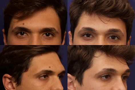 Hairline Forehead Lift and Orbital Bony Contour