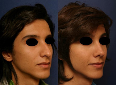 Septorhinoplasty (open) with Cartilage Grafts