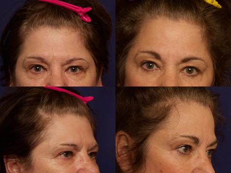 Modified Coronal Forehead Lift