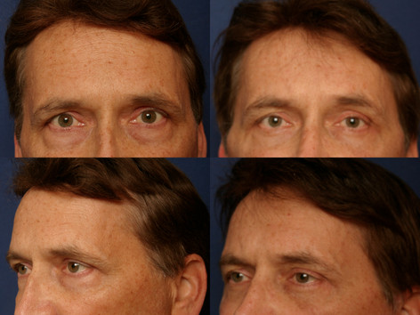 Modified Forehead Lift