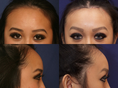 Hairline Forehead Lift and Hairline Lowering