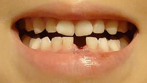 子育ての初体験☆歯