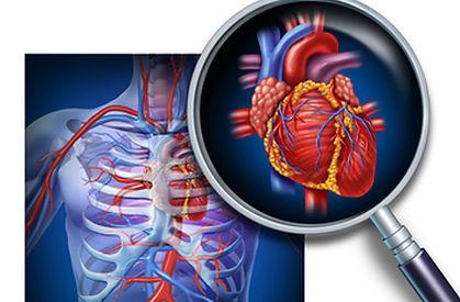 cardiologia-intervencionista.jpg