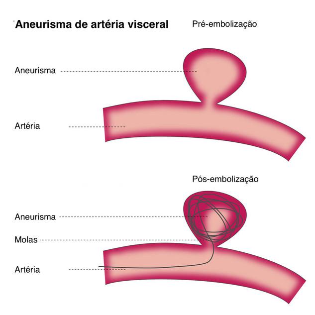Aneurisma Arteria Visceral