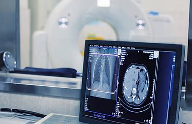 Tomografia-computadorizada.png
