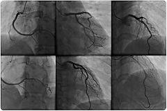 angiografia2.jpg