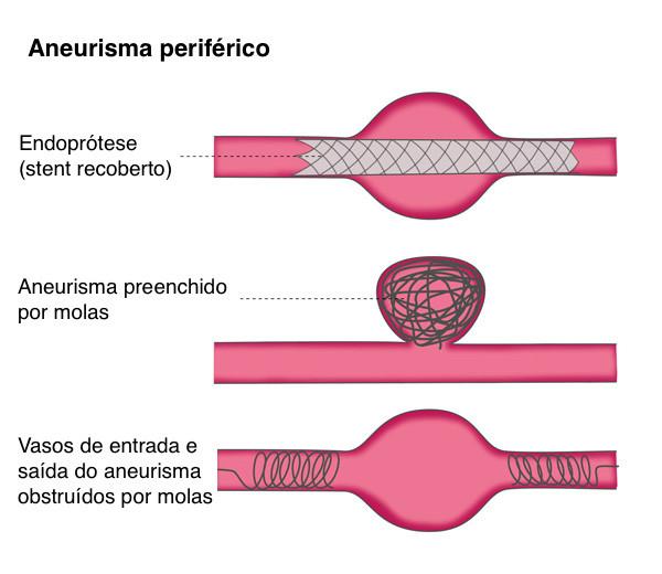 Aneurisma Periferico