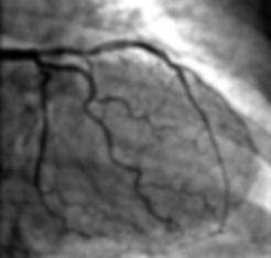 angiografia.jpg
