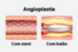 angioplastia_27998_l.jpg