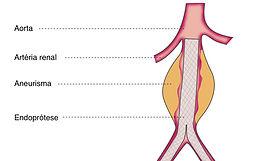 aneurisma evar.jpg