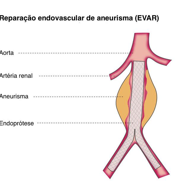Aneurisma Abdominal (EVAR)