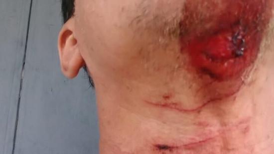 Trabalhador tem pescoço cortado por armadilha de arames em estrada da zona rural de Jequié