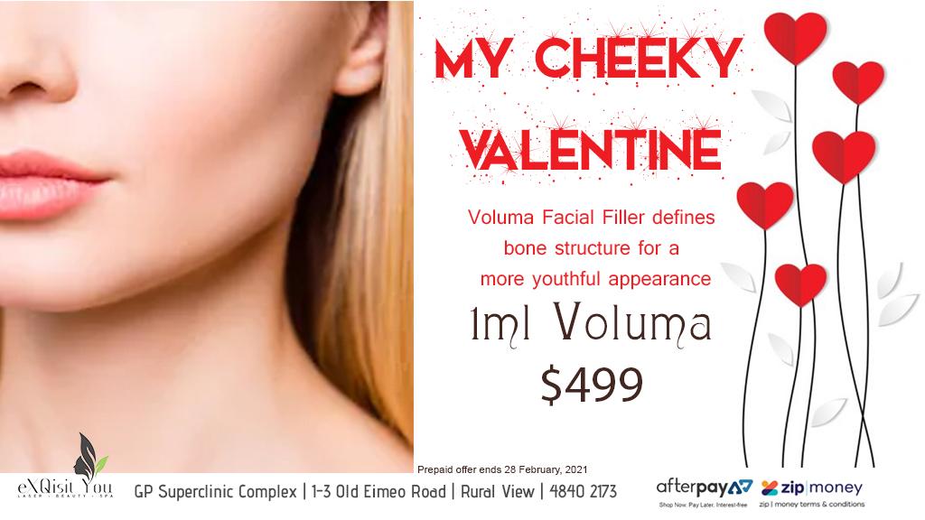Valentines Cheeks