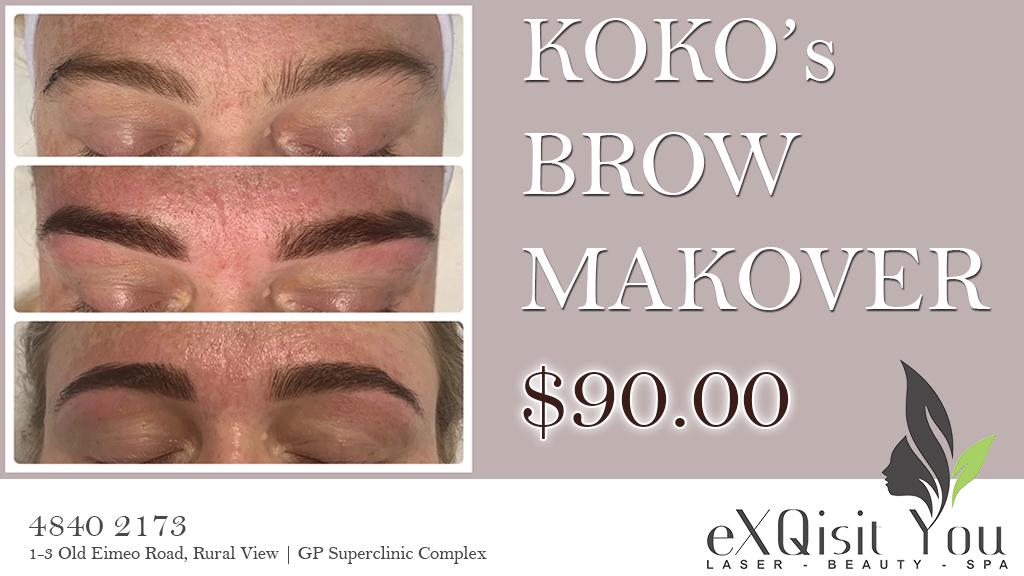 Brow makeover