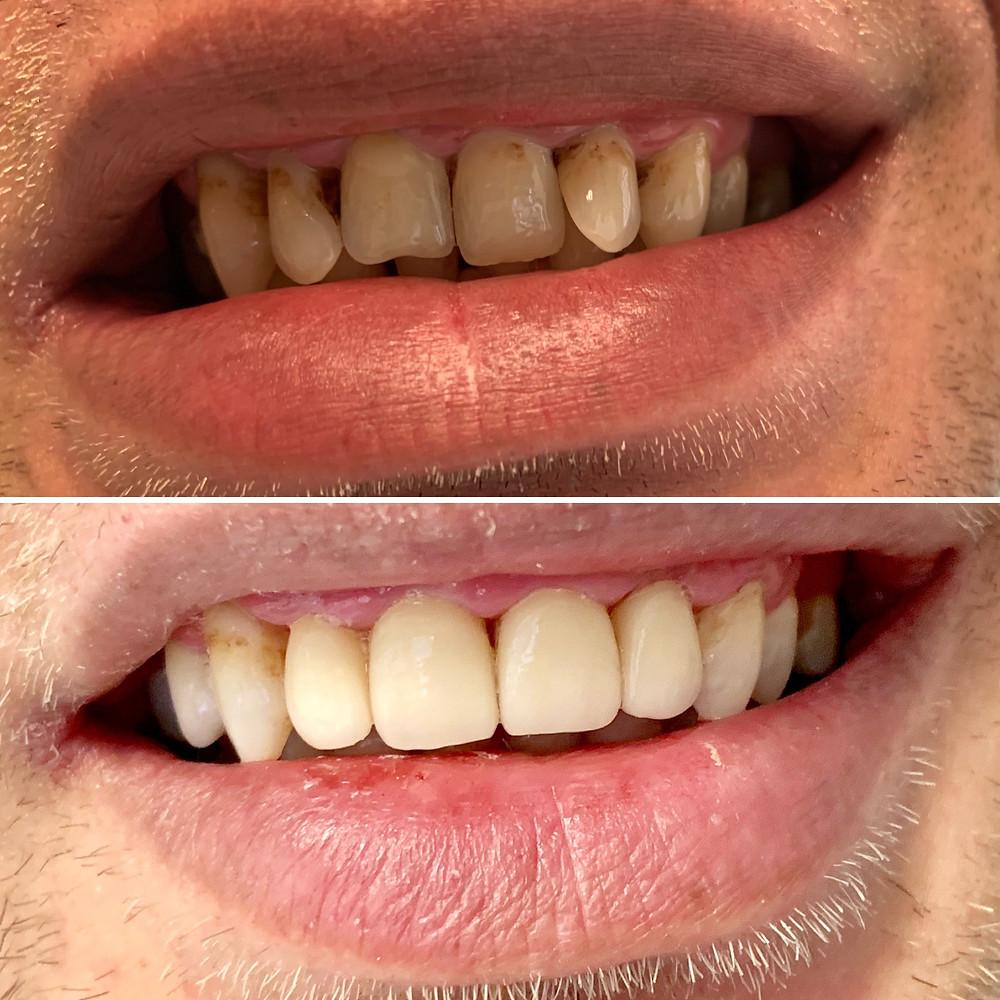 Мъж с оцветяване на горните зъби и междузъбни пространства