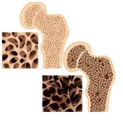 Diferencia entre un hueso sano y un hueso con osteoporosis.