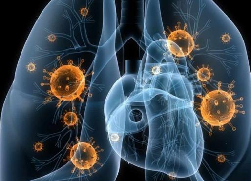 HIIT y cáncer de pulmón ¿Es seguro entrenar las semanas previas a una operación?