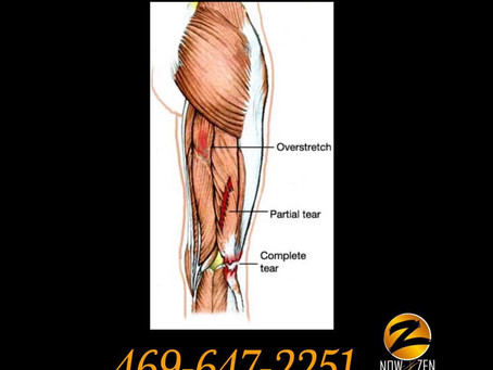 Now and Zen Bodyworks and Hamstring Injuries
