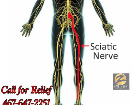 Now and Zen Bodyworks and Sciatic