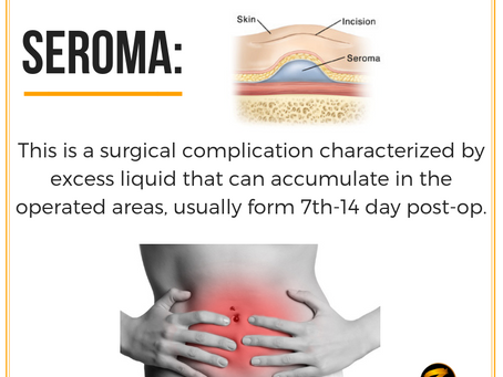 What is a Seroma?