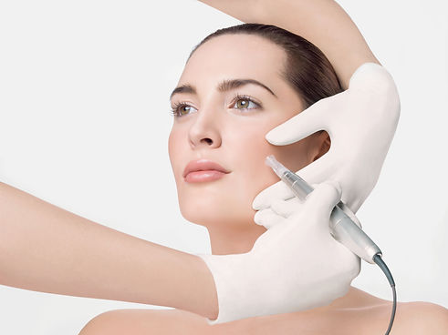 Huidverbetering, micro, needling, microneedling, zevenbergen, scoonheid, gezichtsbehandeling, gezicht, huid, beauty, beautysalon