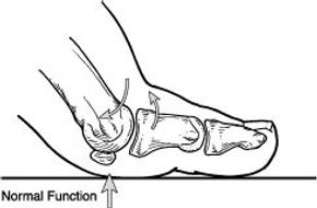 Hallux rigidus education 1.jpg