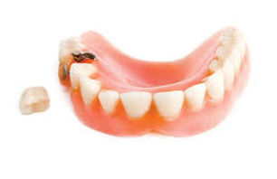 denture-additions.jpg