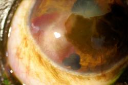 虹彩嚢胞・角膜血腫