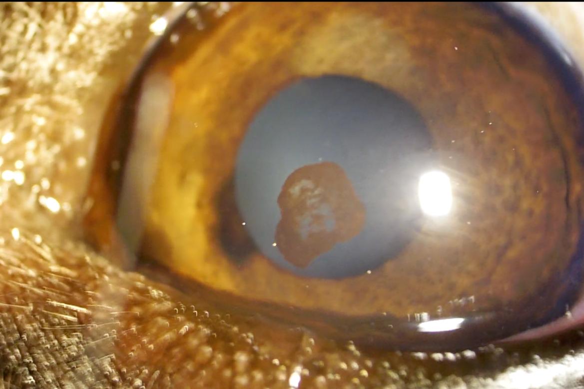 角膜内皮色素沈着
