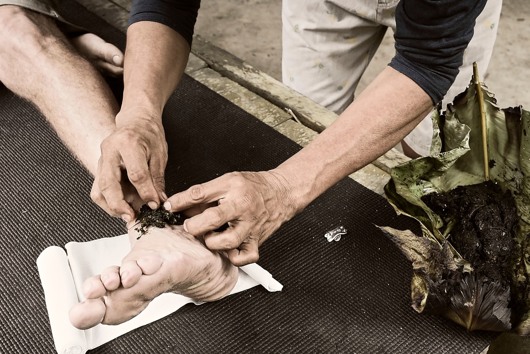Emplasto - Shipibo Plant Medicine Treatment for Pain - Ayahuasca Retreats Casa Galactica