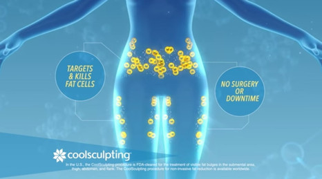 Coolsculpting forbedring