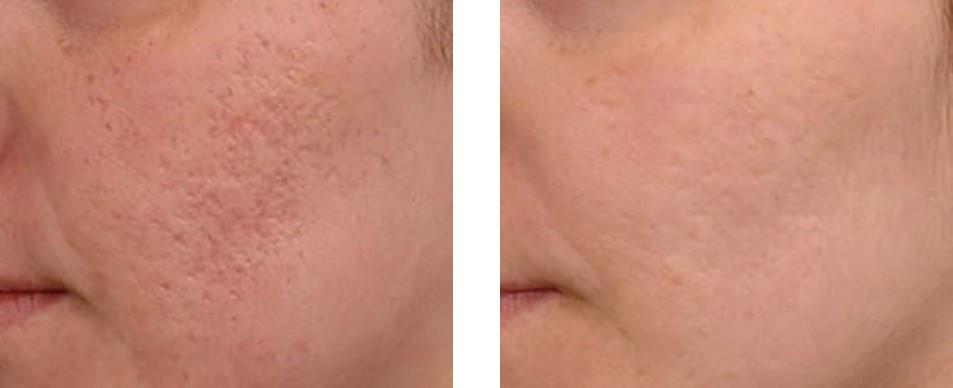 dermapen-before-after1.jpg
