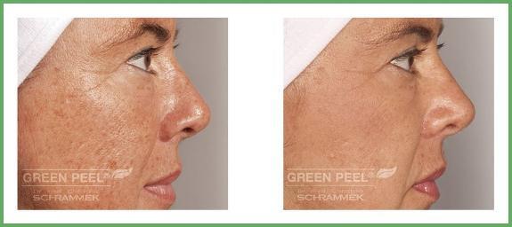 Green peel før og etter