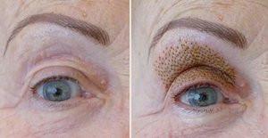 Skinlift 360 før og etter bilder