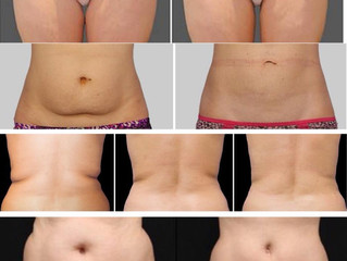 40% ut april på Coolsculpting
