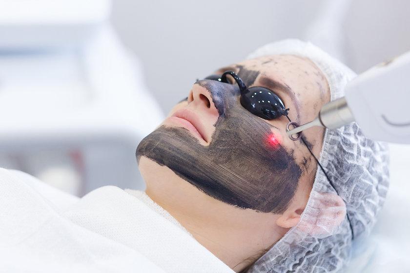 Carbon face peeling procedure. Laser pul