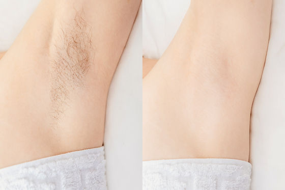 Women underarm hair removal. Concept bef