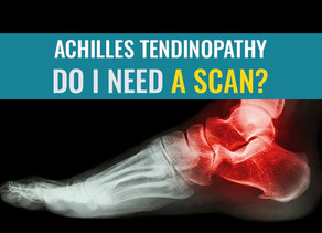 Achilles Tendinopathy – Do I need a scan?