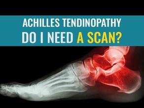 Achilles Tendinopathy – Do I need a scan?