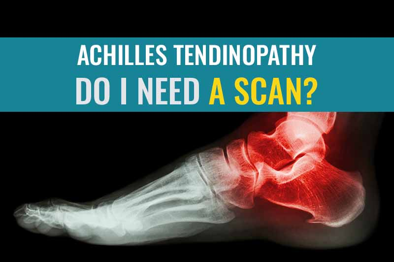 Achilles Tendinopathy – Do I need a scan? | Treat My Achilles