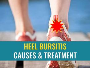 Heel bursitis: Causes and treatment