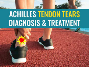 Achilles Tendon Ruptures/Tears - Diagnosis & Treatment