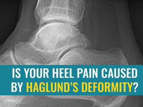 Is your heel pain caused by Haglund's Deformity?