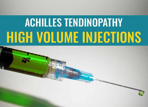 High Volume Injections as treatment for Achilles tendinopathy