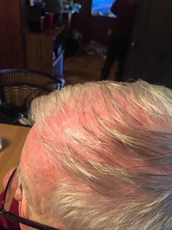Restorative Hair Tonic on the Scalp